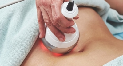 Radio Frequency for Non-surgical Liposuction