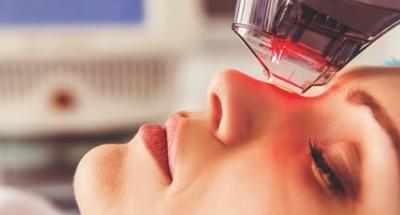 Laser peel skin resurfacing