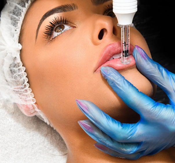 No Needle Dermal Filler - Hyaluronic Air Pen on Lips